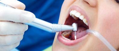 There is also a comfort problem since metal cables and staples tend to irritate the gums and tongue over time.