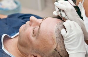Hair Replacement Therapy and its Role in Enhancing Self-Confidence