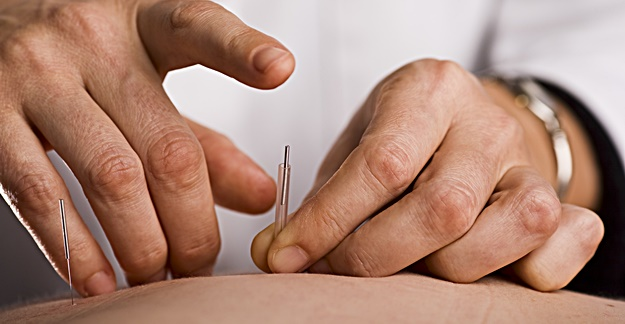 Buy Acupuncture Needles with Ease in Australia